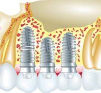 Jakie są koszty oraz rodzaje stomatologicznych implantów